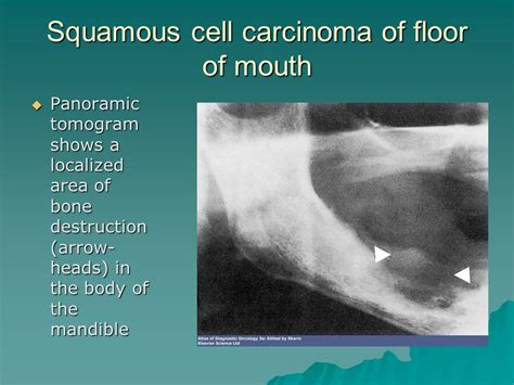 carcinoma floor of the pictorial lesson on and neck cancer ppt