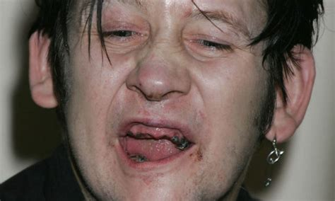 trending pic shane mcgowan looks like a different