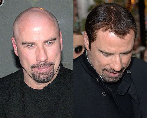is imus bald or real hair john travolta bald celebrity hair transplants