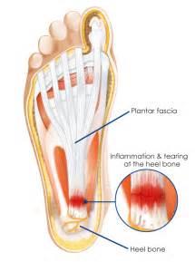 heel spurs and plantar fasciitis treatment in augusta ga