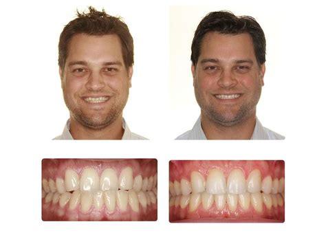 images kunik orthodontics