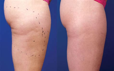 A Before cellulite reduction before after photos lightrx