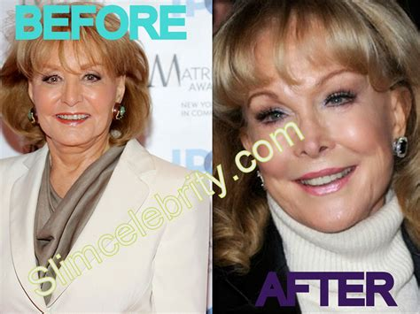 facelifts for women over 60 facelifts for 60 before and after makeovers for women