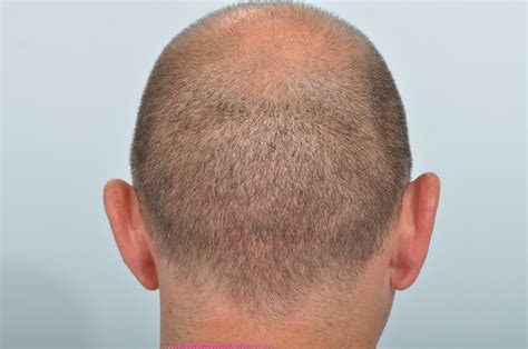 fixing hair graft scar scarring following hair transplant surgery hrbr blackrock