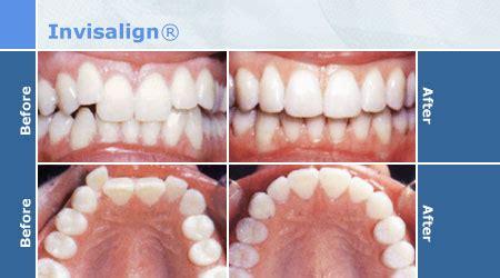 apparecchio denti interno costi l apparecchio invisibile invisalign dente informa
