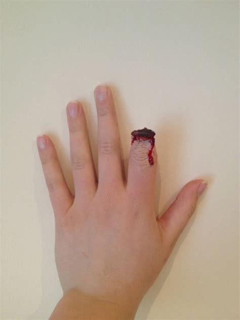 cut off finger rebecca herniman