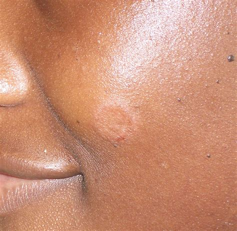 ringworm treatment ringworm pictures causes symptoms how does it look like breeds picture