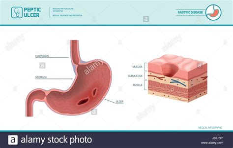 Sore Stomach After C Section by Peptic Ulcer Stock Photos Peptic Ulcer Stock Images Alamy