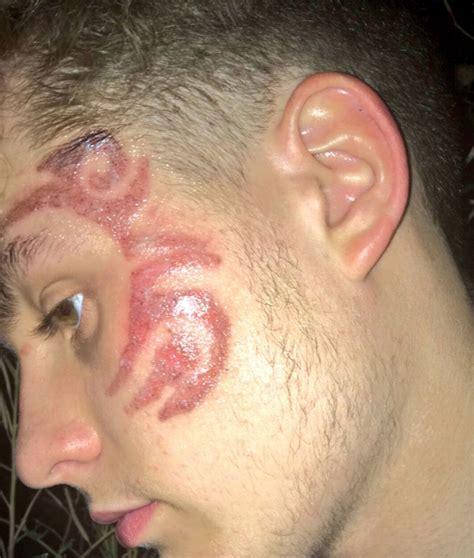 Black Henna Tattoo Scars Makedes Com Black Henna Removal 2
