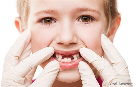 baby teeth cavities in baby teeth should you get baby teeth filled answers