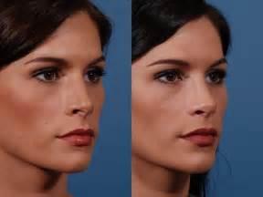 фото ринопластики до и после. в махачкала