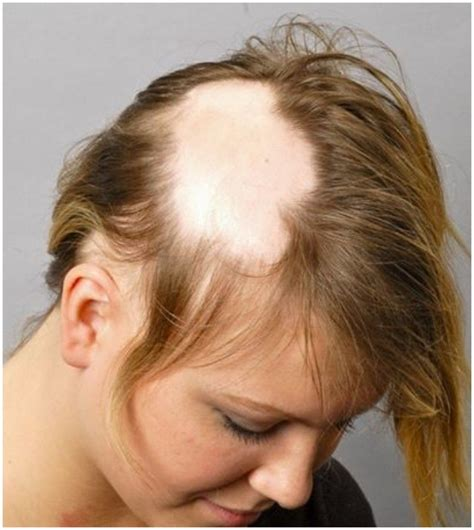 hair style for bald spot and thinning hair alopecia areata cure pictures causes treatment