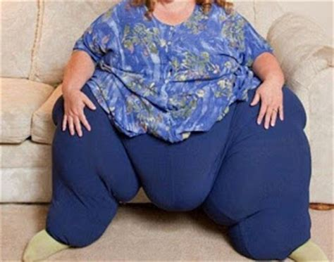 what is a fupa how to get rid meaning causes before what is a fupa how to get rid meaning causes before