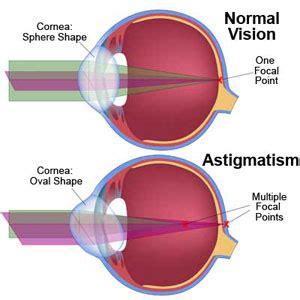 astigmatism symptoms, causes, diagnosis, treatment