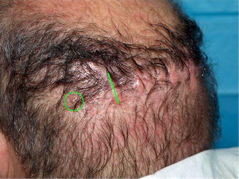 hair vagainas image