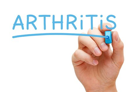 arthritis relief family chiropractic grappin chiropractic clinic of port and bradenton fl