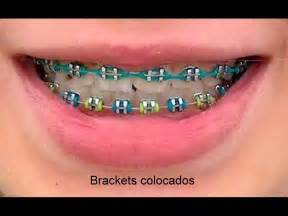 what color braces make your teeth look whiter surgery pics part 267