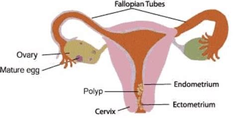 cervical polyp removal, symptoms, pictures, what is?