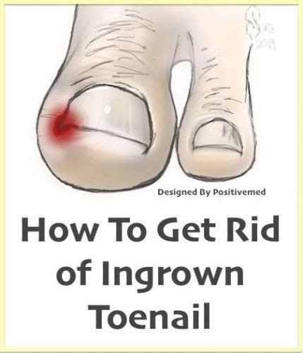 how can you get rid of ingrown hair on private place natural home remedy for ingrown toenails how to get you