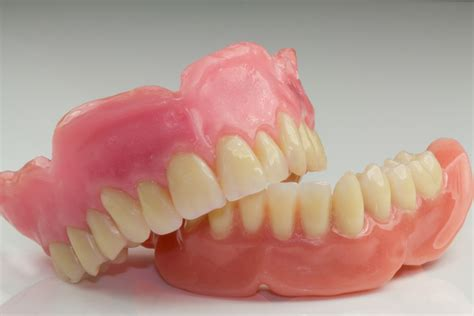 protesi totale mobile dr ssa stefania cadeddu protesi dentale fissa mobile