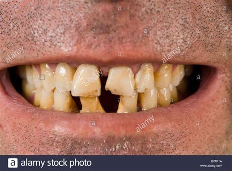 bad teeth teeth www imgkid the image kid has it
