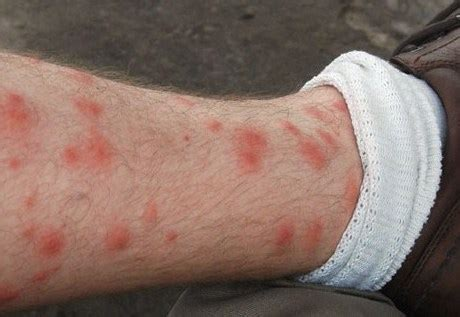 do bed bugs make you itch itchy rash on legs causes and treatments