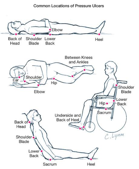 pressure ulcer points diagram 301 moved permanently
