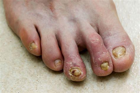 Nail Treatments by How To Treat Toenail Fungus