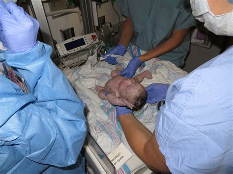 c section at 36 weeks c section delivery with twins www pixshark com images