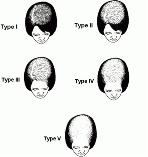 ludwig pattern hair loss female pattern hair loss scale www fighthairloss org