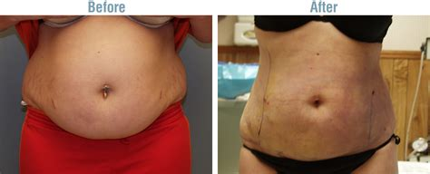 liposuction after c section lipo after c section 28 images before and afters