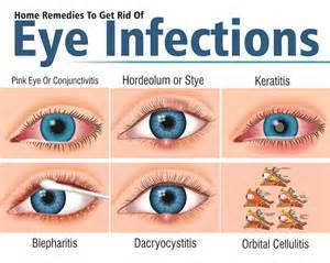 eye infection home remedies home remedies to get rid of eye infections