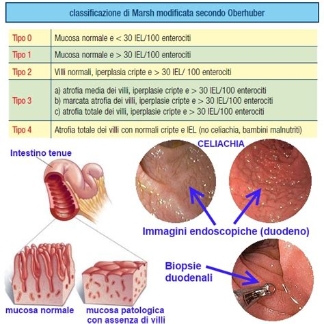 vasi chiliferi malassorbimento meteorismo diarrea celiachia