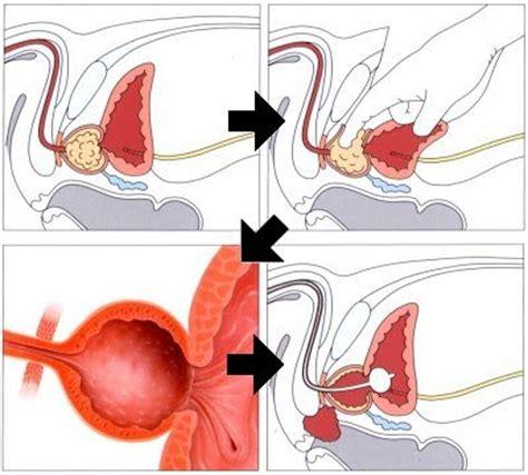 vasi cavernosi alternative surgical options button turp