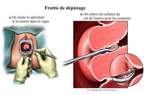 pap test flogosi cancer du col de l ut 233 rus symptomes vaccin traitement