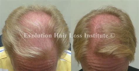 before snd after picture of hair growth in eonen before and after hair growth treatment photos