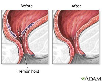 hemorrhoids multimedia encyclopedia health information