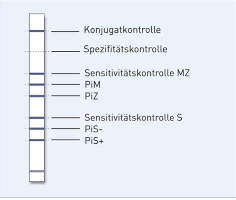 protein z mangel genotype aat bestimmung der zwei wichtigsten
