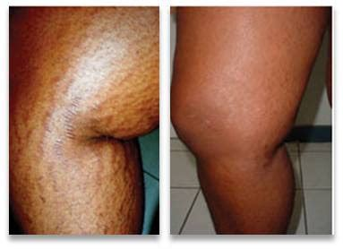 light therapy stretch marks i am other changing the word quot impossible quot to i m