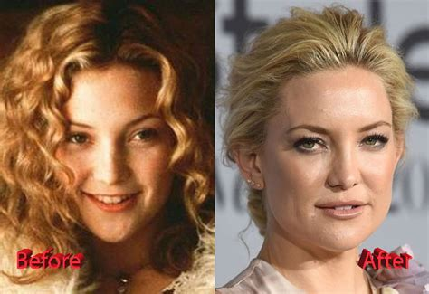Ok I Admit It I Admire Kate At by Kate Hudson Plastic Surgery A