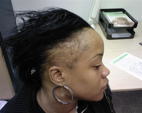 receding hairline african american good hair beauty diaries has your hairline gone m i a