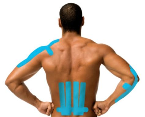 what is kinesiology tape   k tape   theratape
