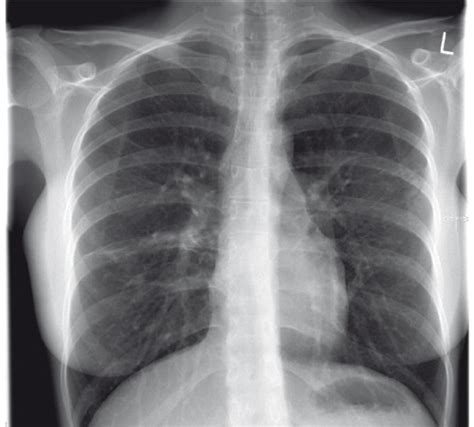 Tb Chest X Images