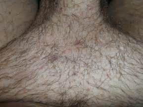 pubic hair on thigh pictures of ingrown hair pubic area dark brown hairs