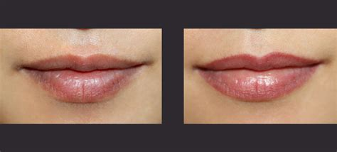 tattoo lip liner before and after semi permanent lip liner by award winning specialists