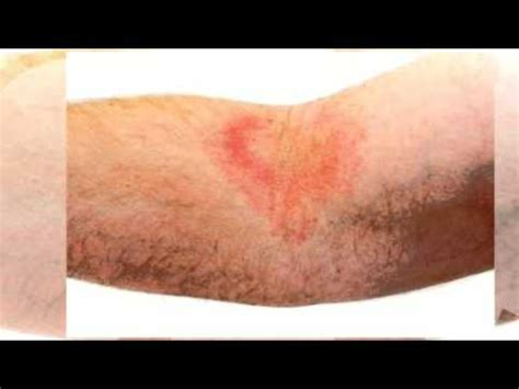 light treatment for eczema light treatment for eczema youtube