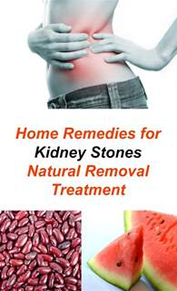 home remedies for kidney stones home remedies for kidney stones and removal treatment