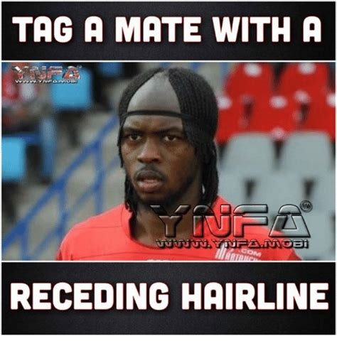 Receding Hairline Meme - tag a mate with a receding hairline hairline meme on sizzle