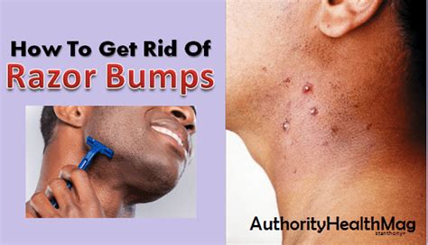 how to get rid of white bumps on the side of your tongue rash and dry skin on face after shaving diydry co