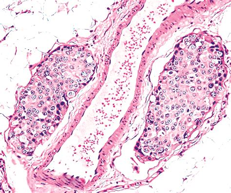 Ductal Carcinoma Breast Pathology Outlines by Pathology Outlines Ductal Carcinoma Nos General
